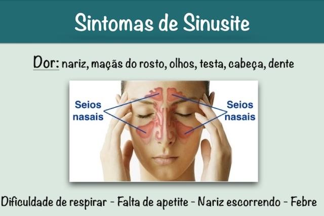 Resultado de imagem para Sintomas de sinusite – Tosse